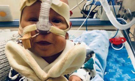 El caso de George, un bebé que nació del tamaño de una jeringa
