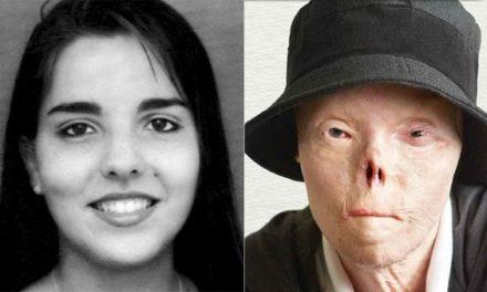 Muere venezolana que se convirtió en rostro de la campaña de conducir ebrio en EE.UU.